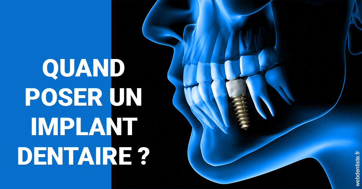 https://dr-dossou-olga.chirurgiens-dentistes.fr/Les implants 1